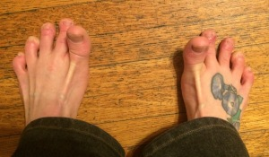 Toe Lifts
