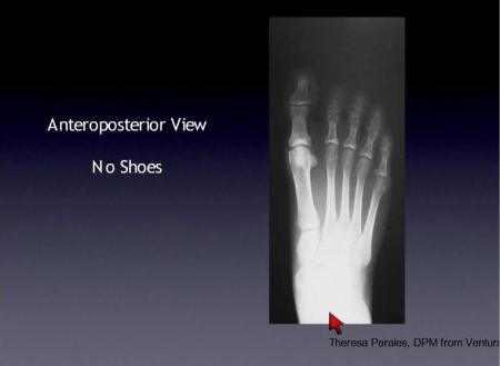 xray of normal foot
