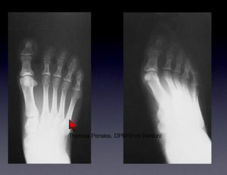 xray comparison of feet